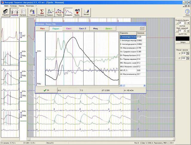 Реовазография (РВГ): что это такое, показания, анализ результатов