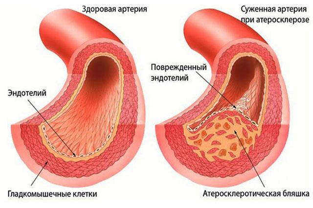 сужение сосудов при атеросклерозе