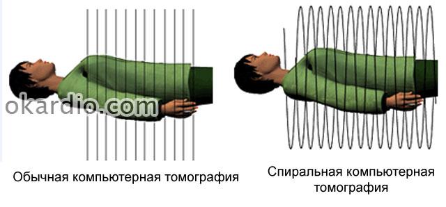 обычная и спиральная компьютерная томография