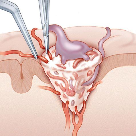 хирургическое лечение мальформации сосудов