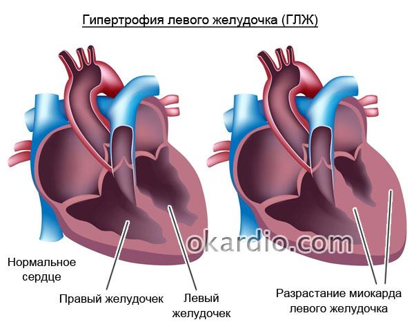 гипертрофия (увеличение) левого желудочка (ГЛЖ)