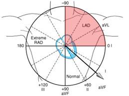Отклонение ЭОС влево: причины, диагностика и лечение