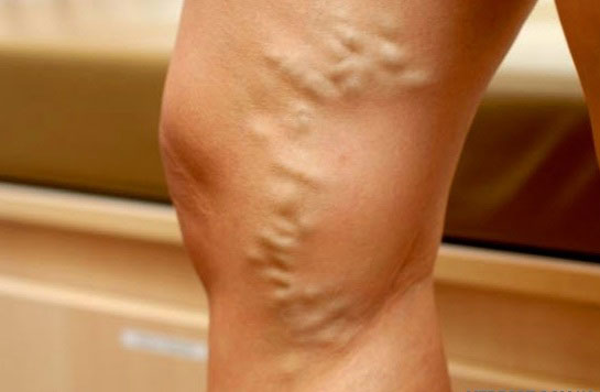 варикозные вены на ноге