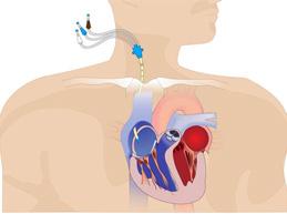 катетер для измерения центрального венозного давления