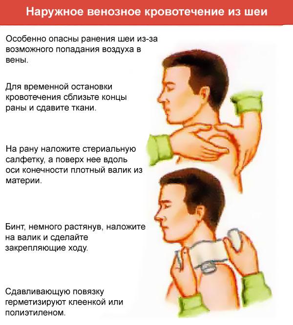 первая помощь при венозном кровотечении из шеи