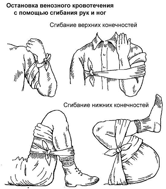 остановка кровотечения при помощи сгибания конечностей