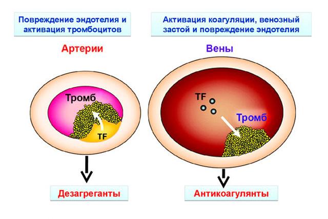 действие антитромбоцитарных препаратов