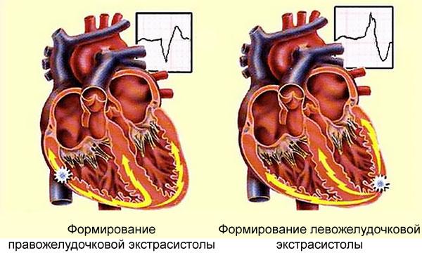 формирование систол в сердце