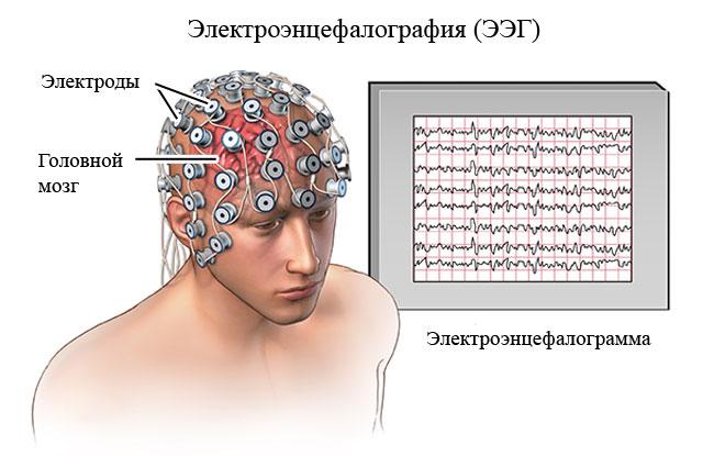 электроэнцефалографическое исследование и его результаты