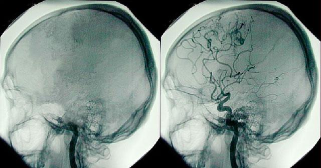 результат ангиографии сосудов головного мозга