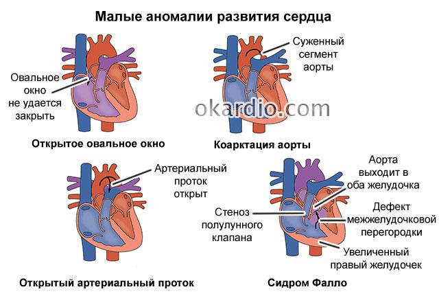 возможные сердечные аномалии