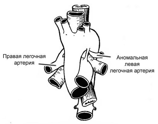 аномальная легочная артерия