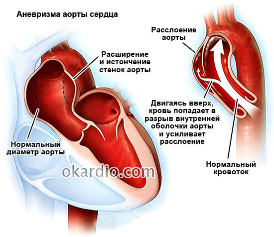 Ложная аневризма грудной аорты -
