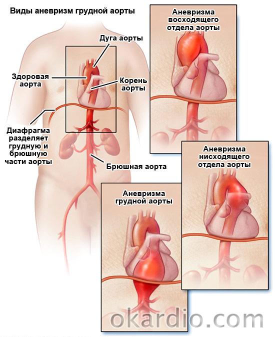 виды аневризм грудной аорты