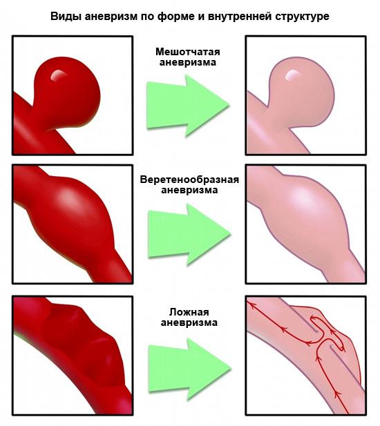 виды аневризм по форме и внутренней структуре