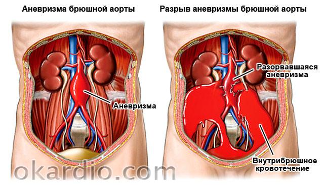разрыв аневризмы брюшной аорты