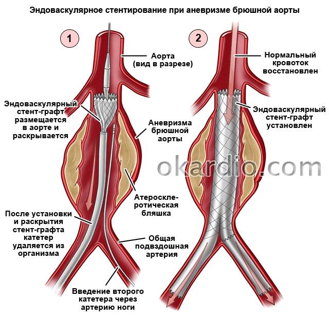 эндоваскулярное стентирование при аневризме брюшной аорты
