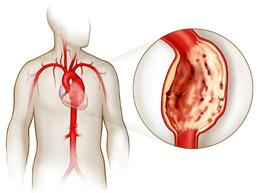 Полная характеристика аневризмы аорты сердца