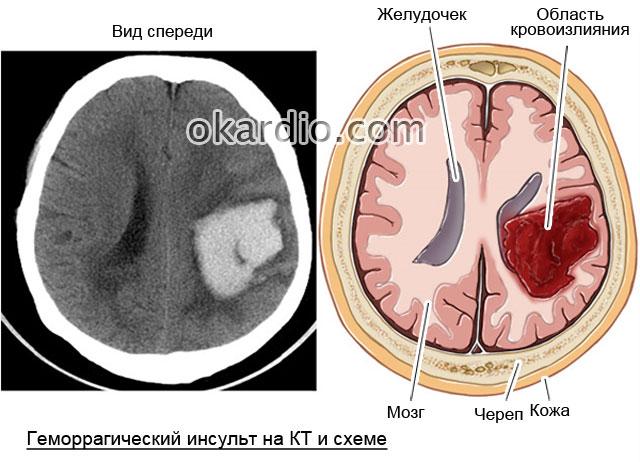 геморрагический инсульт на схематичном изображении и компьютерной томограмме