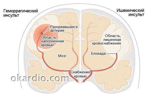 геморрагически и ишемический типы нарушения кровоснабжения мозга