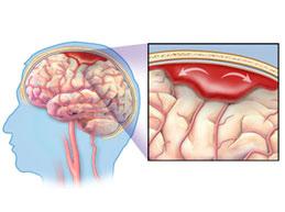 схематичное изображение геморрагического инсульта