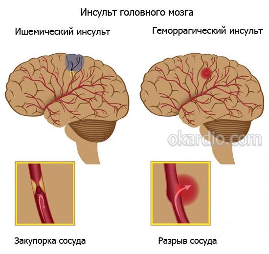 ишемический и геомррагический инсульт