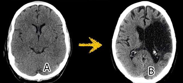 обширный инсульт головного мозга в височной доле. КТ-снимок