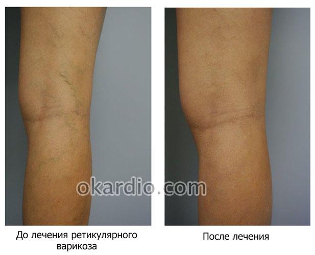 ретикулярный варикоз до и после лечения