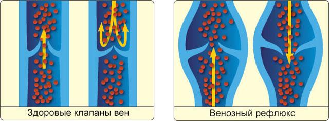 движение крови в здоровых клапанах вен и при рефлюксе
