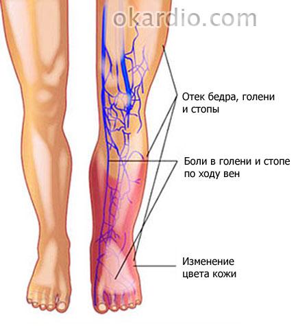 симптомы флебопатии