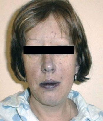 цианоз носогубного треугольника