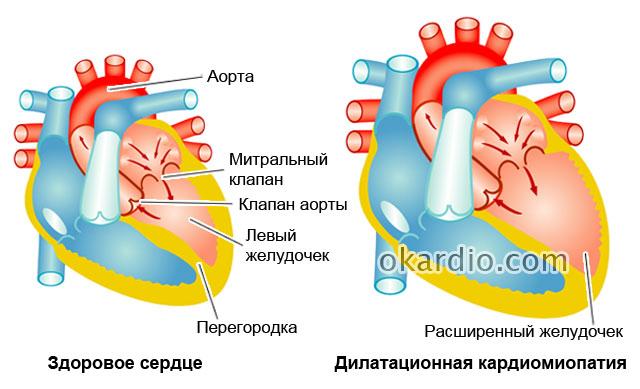 сравнение здорового сердца и дилатационной кардиомиопатии