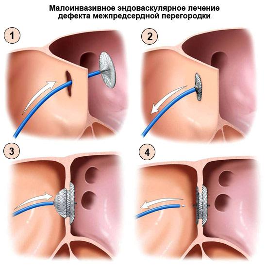 лечение дефекта межпредсердной перегородки