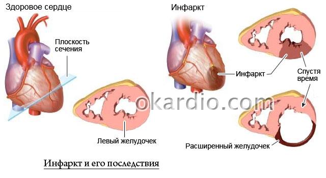 инфаркт и его последствия
