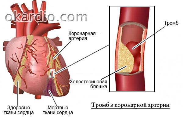 тромбированная коронарная артерия