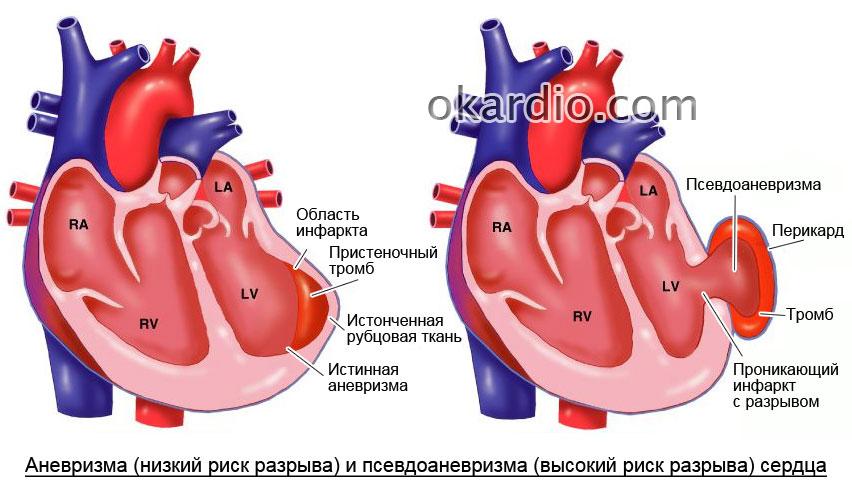 Обширный инфаркт: последствия, шансы выжить и реабилитация