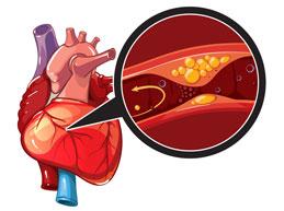 инфаркт миокарда при атеросклерозе коронарной артерии
