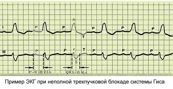 Нарушение внутрижелудочковой проводимости сердца что это