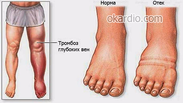 отек ноги при тромбозе глубоких вен