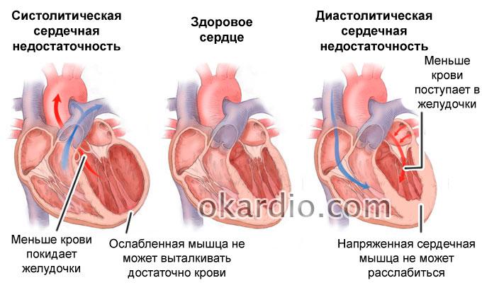 систолическая и диастолическая сердечная недостаточность