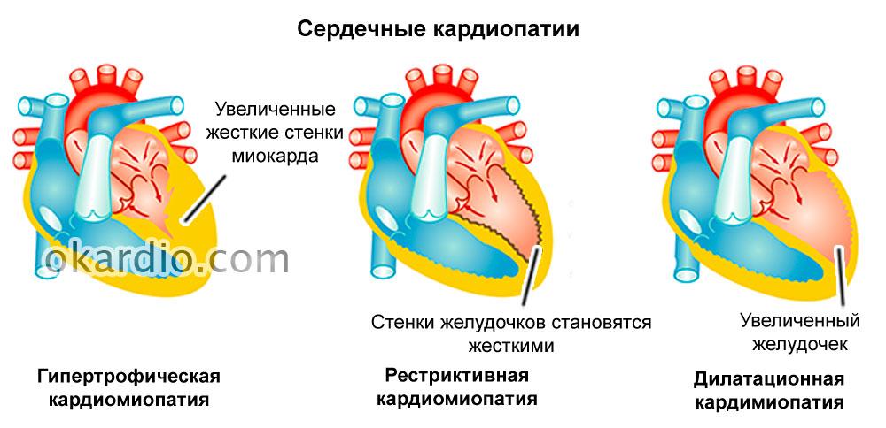При сердечной недостаточности одышка как лечить 222