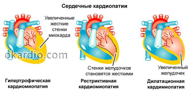 кардиопатии