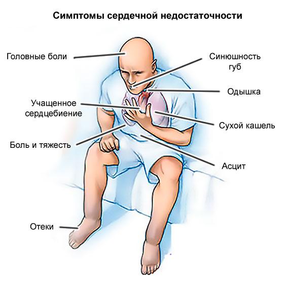 симптомы СН