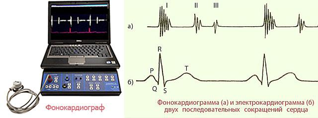 фонокардиограф и фонокардиограмма