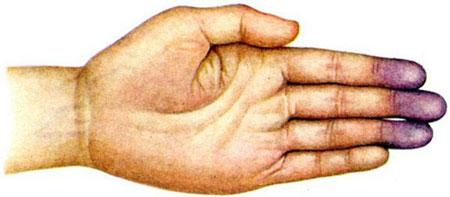 акроцианоз руки