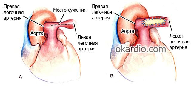 хирургическое лечение стеноза легочной артерии