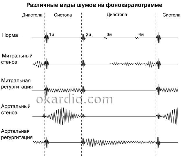 фонокардиограмма с различными шумами сердца