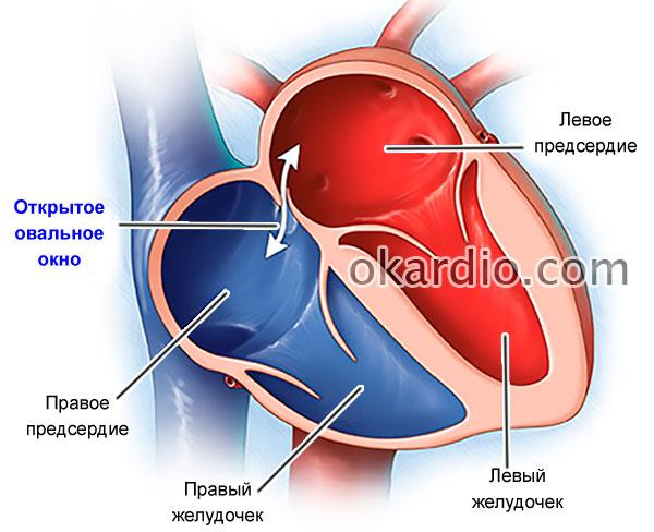 Шумы в сердце у новорожденного: причины, виды, диагностика и лечение