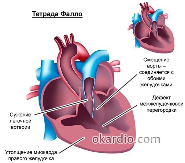 тетрада Фалло – врожденный порок сердца