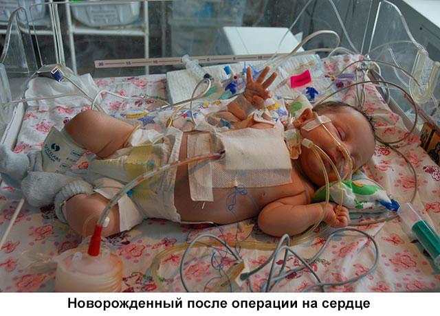 новорожденный после операции на сердце